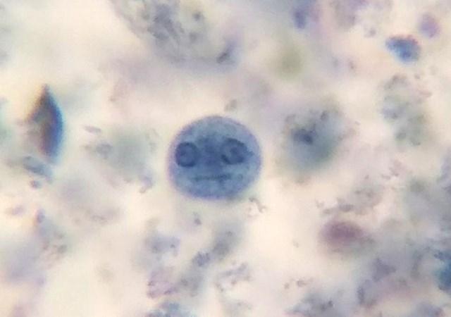 """13. """"Ovo je ameba koju sam ugledao kroz mikroskop."""""""