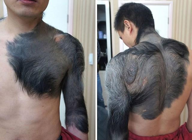 27. Ogroman dlakavi madež zbog kojeg ovaj čovjek malo podsjeća na vukodlaka.