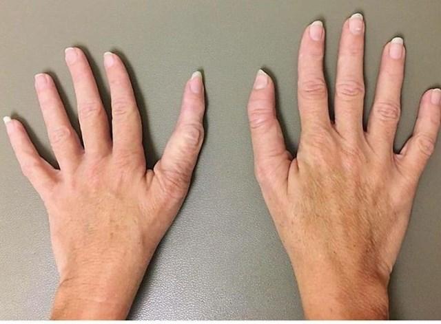10. Specifični prsti.