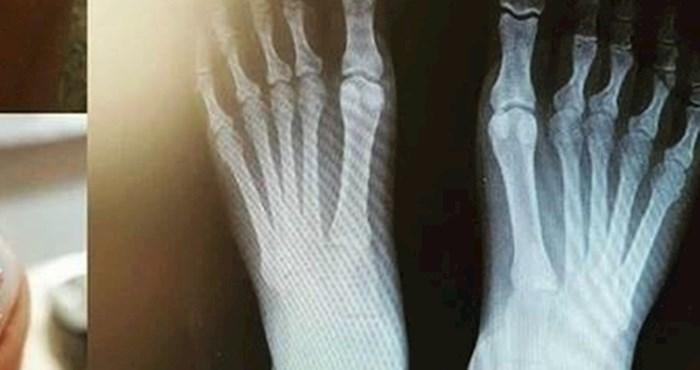 Otišla je napraviti rendgenske slike stopala, doktor se smijao kad je vidio jedan detalj