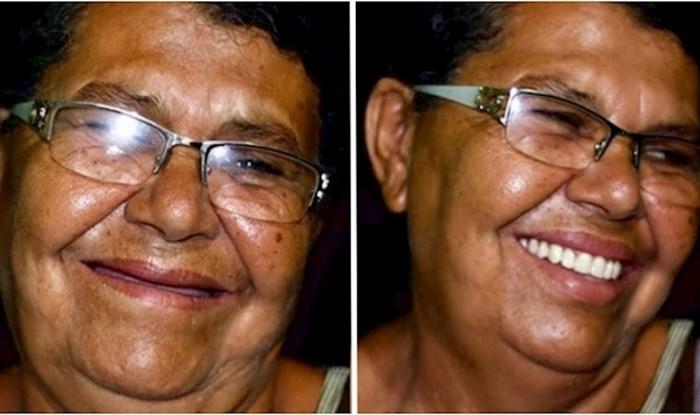 Ovaj brazilski zubar putuje kako bi popravio zube siromašnima; evo 18 prekrasnih transformacija