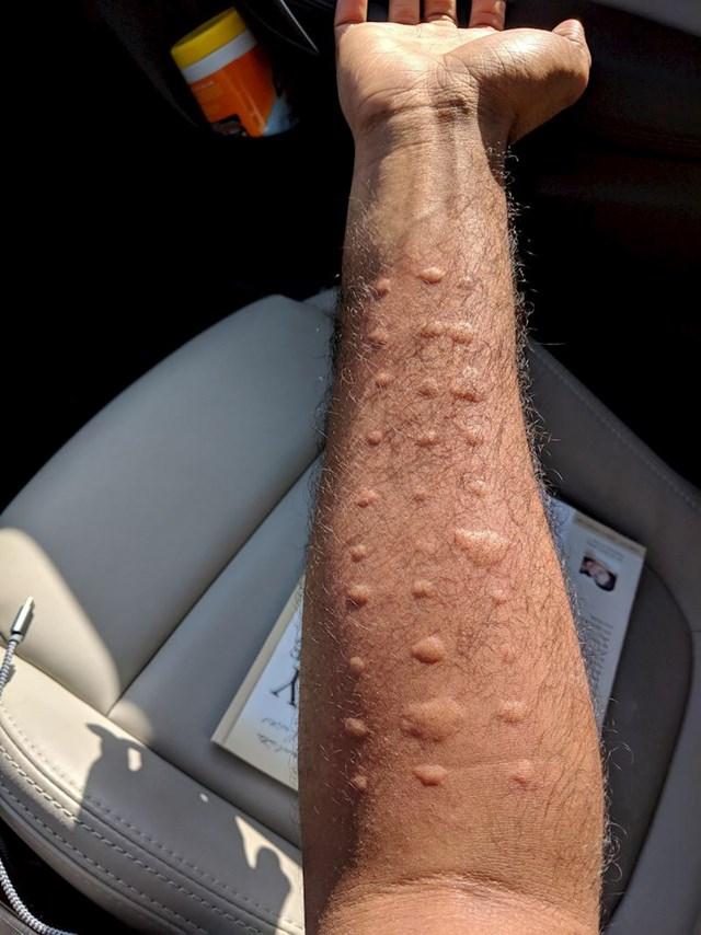 11. Ova osoba saznala je da je alergična na doslovno sve. Njezino tijelo reagiralo je na svaku vrstu alergena.