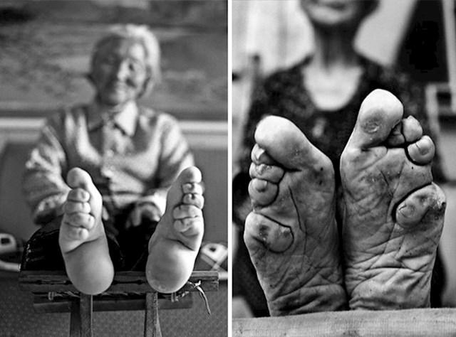Strašna kineska tradicija vezivanja stopala