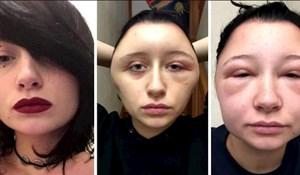 Ove djevojke odlučile su uštedjeti i same obojati kosu. Sad su hit na internetu