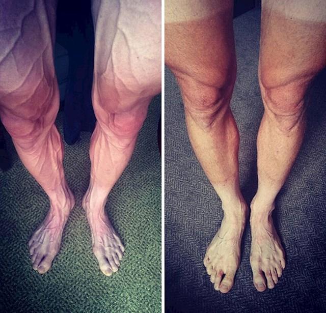 Noge biciklista nakon olimpijske utrke i rekreativne vožnje
