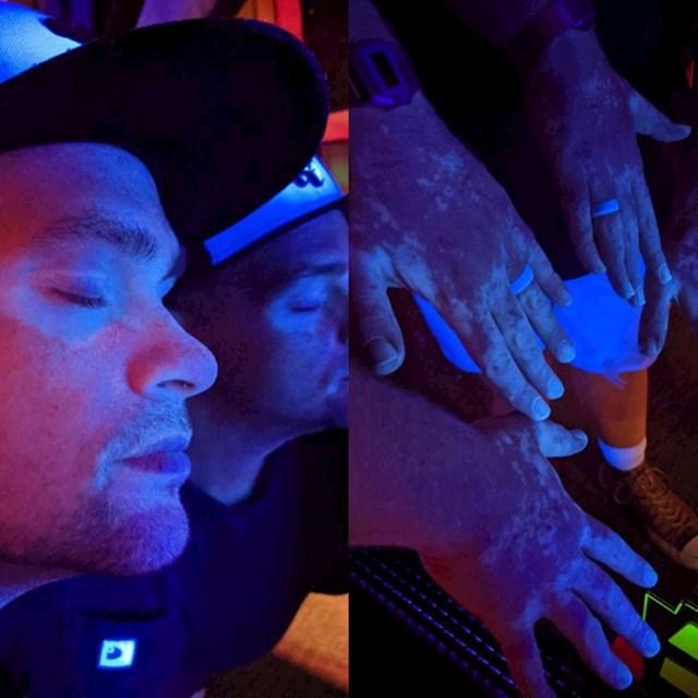 Vitiligo pod plavim svjetlom