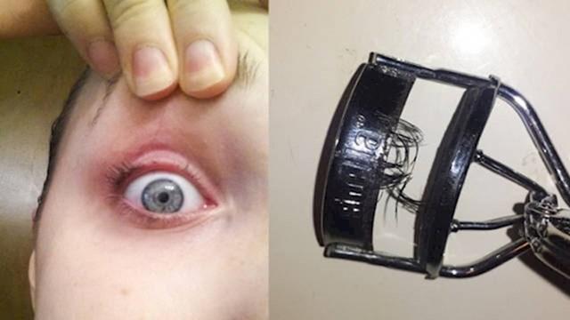 Ponekad vam se može dogoditi da sami sebi uništite trepavice...