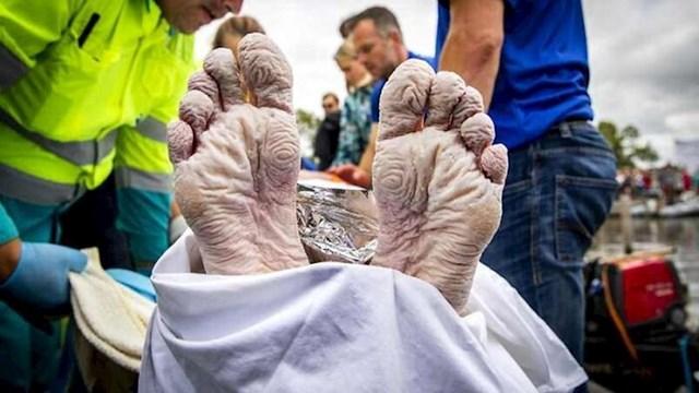 Noge plivačkog maratonca nakon utkre
