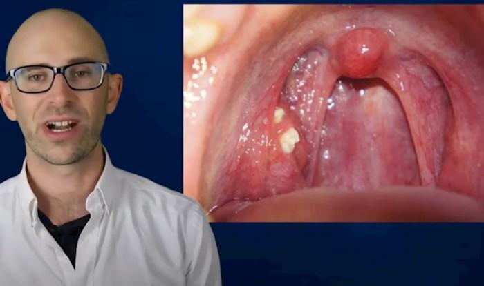 Jeste li ikad primijetili ove bijele točke u ustima? Genijalan video otkriva o čemu se radi