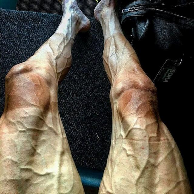 Noge biciklista nakon utrke