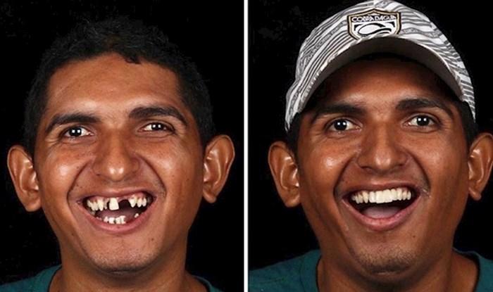 Sjećate  li se brazilskog zubara koji besplatno siromašnima popravlja zube? Objavio je nove fotke