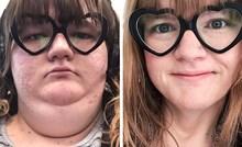 13 ljudi koji su odlučili smršavjeti i u tome uspjeli