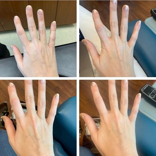 Moja koža prije, za vrijeme i nakon primanja željeza putem infuzije (6 sati između prve i posljednje fotografije)