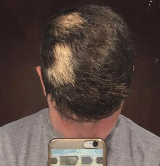 """""""Ovakva mi je kosa od rođenja"""""""
