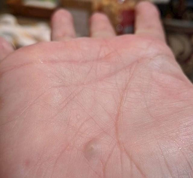 """""""Kamen u mojoj ruci koji je tu od biciklističke nesreće prije 25 godina"""""""