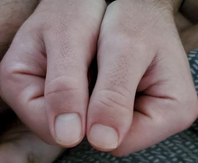 """""""Imam različite palce"""""""