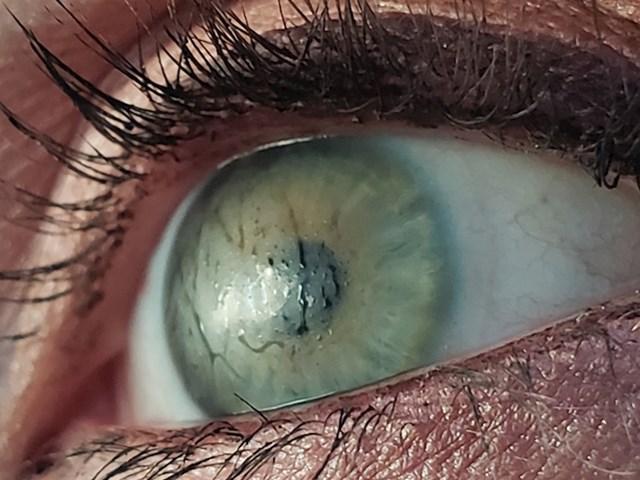 """""""Kontaktne leće moje žene zamagle se kao staklena vrata kabine za tuširanje"""""""