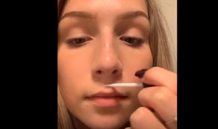 VIDEO Novi bizarni trend je povećanje usana ljepilom za trepavice, pogledajte kompilaciju ljudi koji su ga isprobali