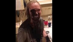 VIDEO Žena je pokušala izblijediti zube aktivnim ugljenom, pogledajte zašto to nije bila dobra ideja