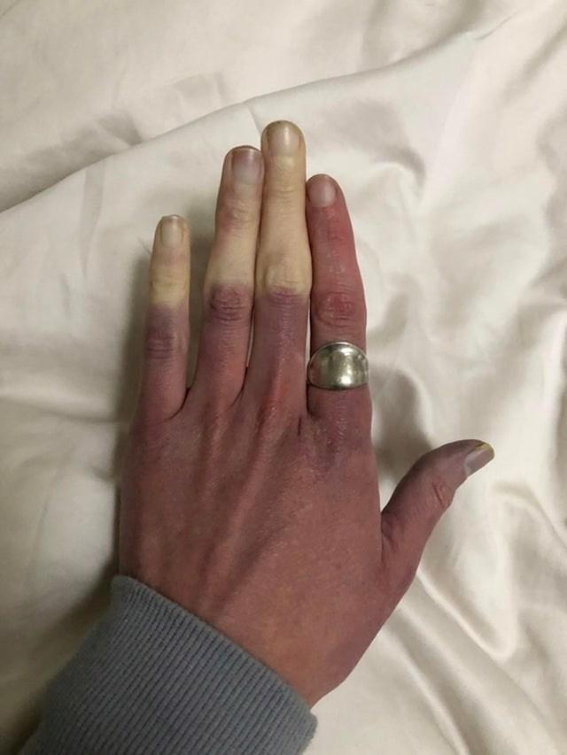 """""""Kad zahladi, moji prsti ovako izgledaju"""""""