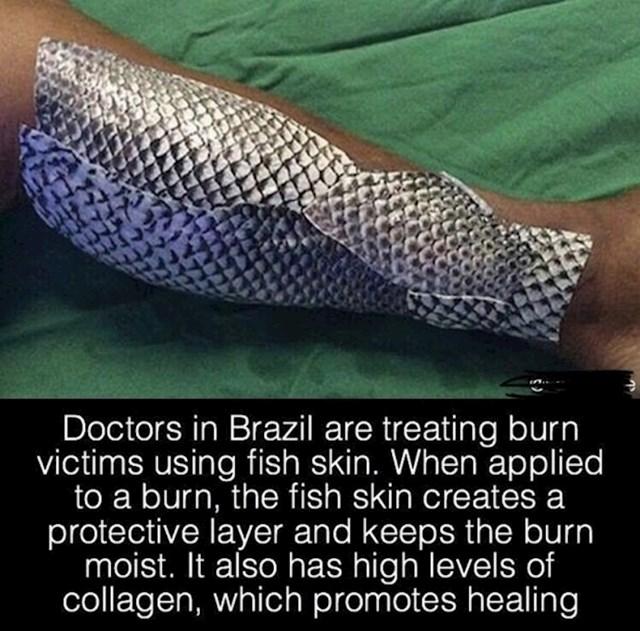U Brazilu, liječnici koriste kožu ribe za tretiranje opekotina. Ona vlaži ozlijeđeno područje, a kolagen iz kože pomaže cijeljenju