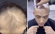 VIDEO Ćelavcu su potpuno promijenili izgled i on sada izgleda 10 godina mlađe
