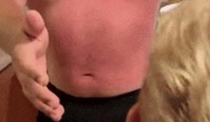 Lik je htio dokazati koliko je jako izgorio na suncu, ovo je urnebesno