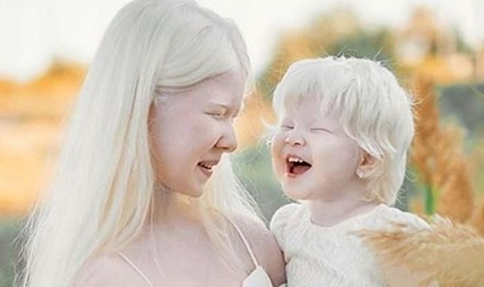 Između ovih sestara 12 je godina razlike, a obje su rođene s albinizmom