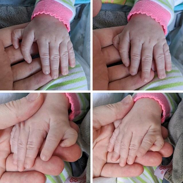 """""""Moja najmlađa kćer rodila se u veljači. Ima jedan prst više na svakoj šaci"""""""