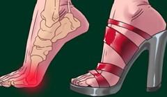 Visoke pete ne ugrožavaju samo vaša stopala, ovim dijelovima tijela čine veliku štetu