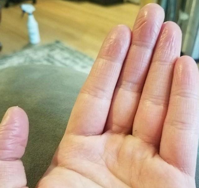 """""""Nemam otiske prstiju"""""""