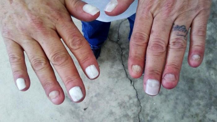 Žena je cijeli život grizla nokte, pogled na njene prste objašnjava zbog čega tvrdi da joj je to uništilo život