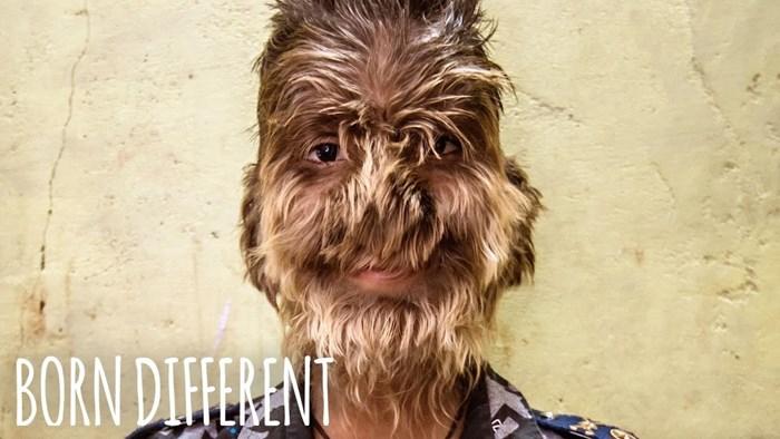 """Dječak sa sindromom vukodlaka kada odraste želi biti """"normalan"""", ovako izgleda njegov život"""