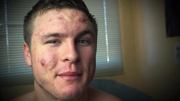 Mladić imao ogromne probleme s aknama, otkrio je koje su mu namirnice promijenile izgled
